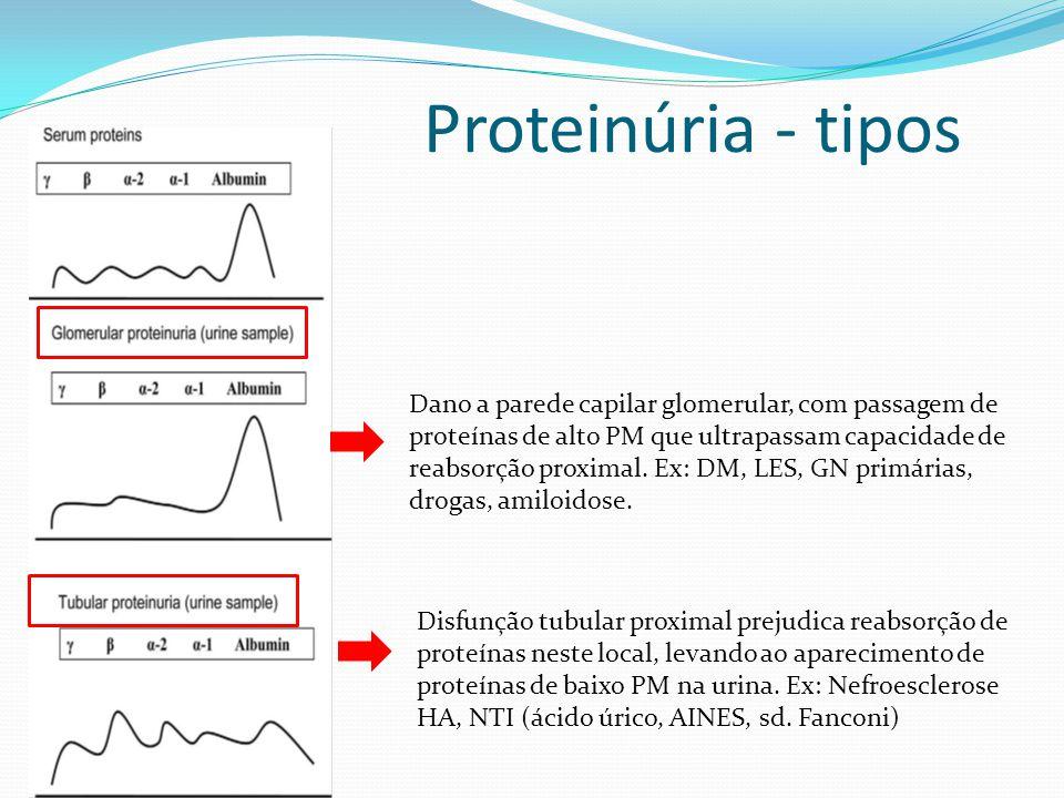 Proteinúria - tipos Dano a parede capilar glomerular, com passagem de proteínas de alto PM que ultrapassam capacidade de reabsorção proximal. Ex: DM,