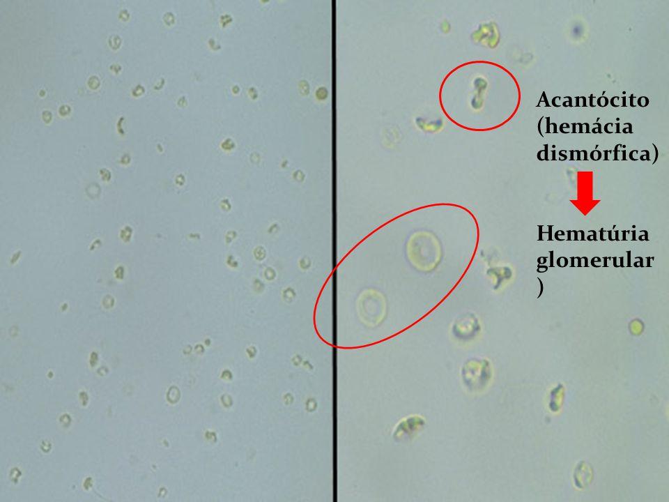 Acantócito (hemácia dismórfica) Hematúria glomerular )