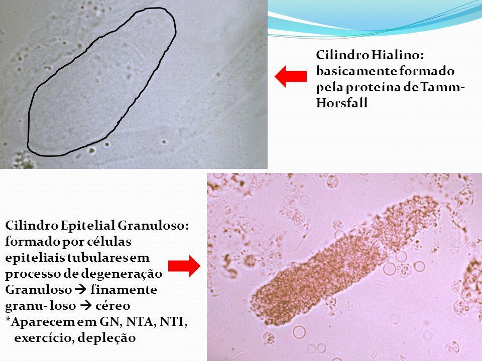 Cilindro Hialino: basicamente formado pela proteína de Tamm- Horsfall Cilindro Epitelial Granuloso: formado por células epiteliais tubulares em processo de degeneração Granuloso  finamente granu- loso  céreo *Aparecem em GN, NTA, NTI, exercício, depleção