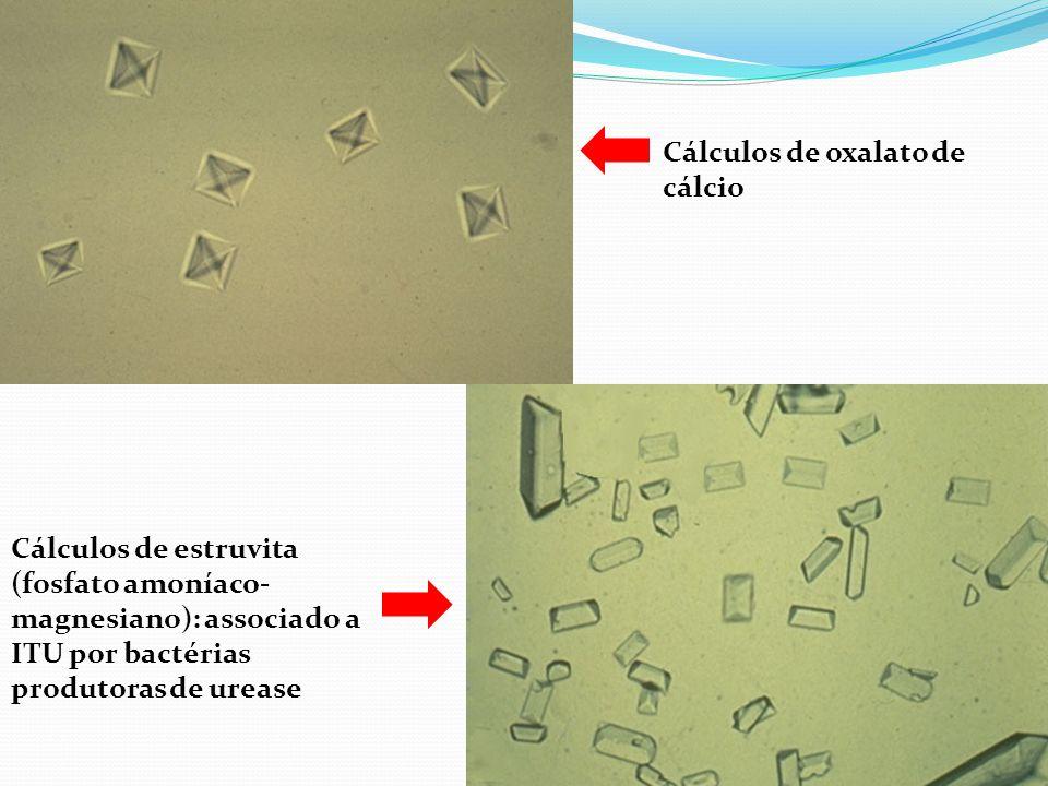 Cálculos de oxalato de cálcio Cálculos de estruvita (fosfato amoníaco- magnesiano): associado a ITU por bactérias produtoras de urease