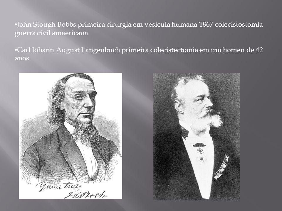 John Stough Bobbs primeira cirurgia em vesicula humana 1867 colecistostomia guerra civil amaericana Carl Johann August Langenbuch primeira colecistect