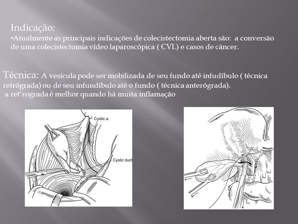 Indicação: Atualmente as principais indicações de colecistectomia aberta são: a conversão de uma colecistectomia vídeo laparoscópica ( CVL) e casos de