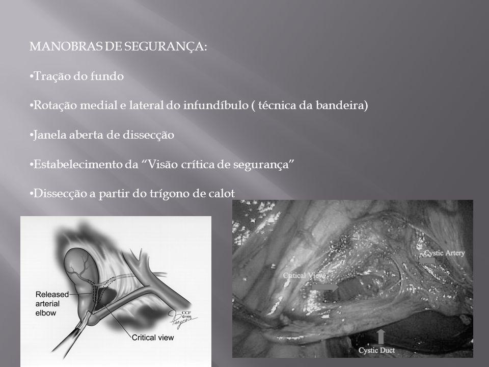 """MANOBRAS DE SEGURANÇA: Tração do fundo Rotação medial e lateral do infundíbulo ( técnica da bandeira) Janela aberta de dissecção Estabelecimento da """"V"""