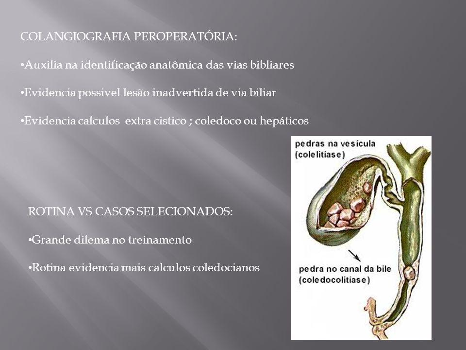 COLANGIOGRAFIA PEROPERATÓRIA: Auxilia na identificação anatômica das vias bibliares Evidencia possivel lesão inadvertida de via biliar Evidencia calcu
