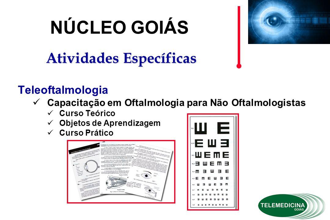 Teleoftalmologia Capacitação em Oftalmologia para Não Oftalmologistas Curso Teórico Objetos de Aprendizagem Curso Prático NÚCLEO GOIÁS Atividades Específicas