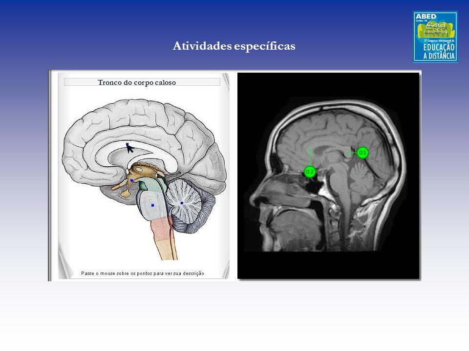 Tronco do corpo caloso Atividades específicas