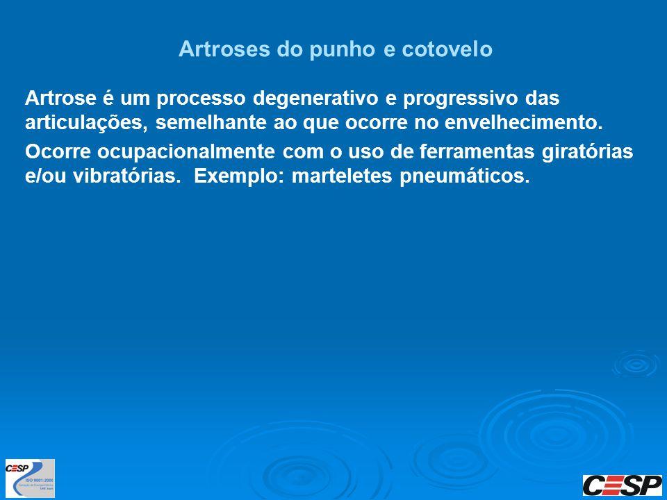 Artroses do punho e cotovelo Artrose é um processo degenerativo e progressivo das articulações, semelhante ao que ocorre no envelhecimento. Ocorre ocu