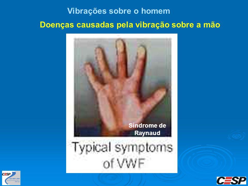 Vibrações sobre o homem Doenças causadas pela vibração sobre a mão Síndrome de Raynaud