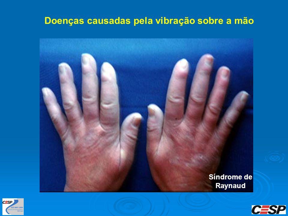 Doenças causadas pela vibração sobre a mão Síndrome de Raynaud