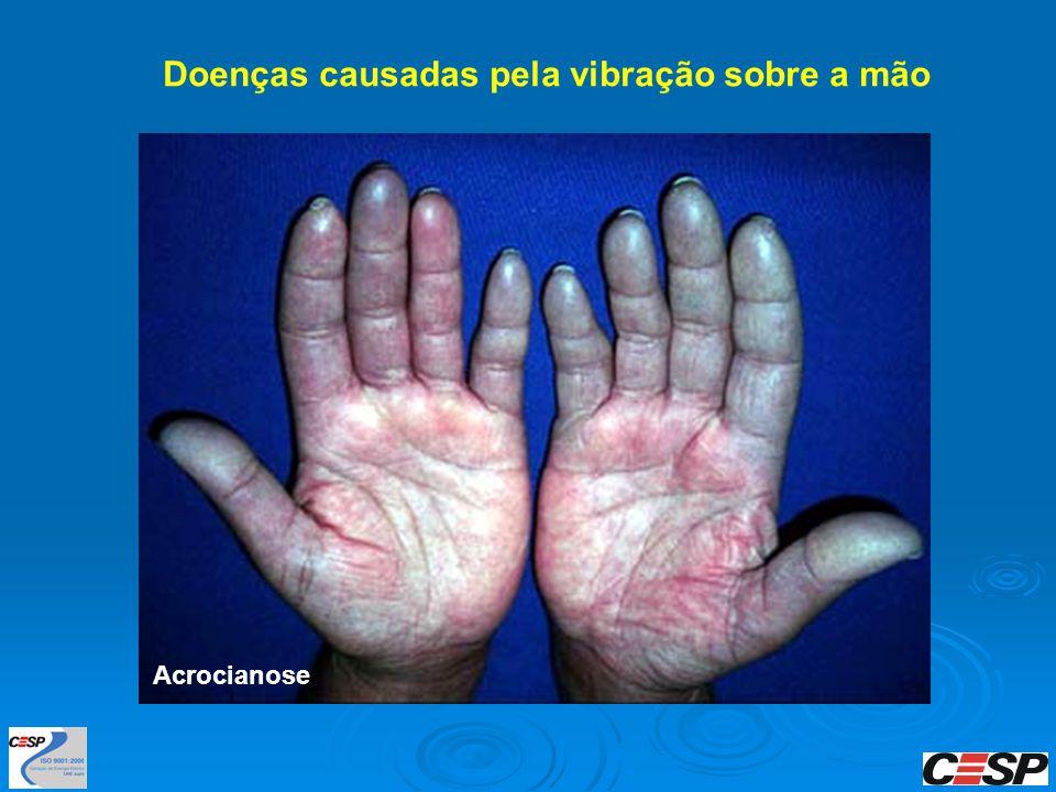 Doenças causadas pela vibração sobre a mão Acrocianose