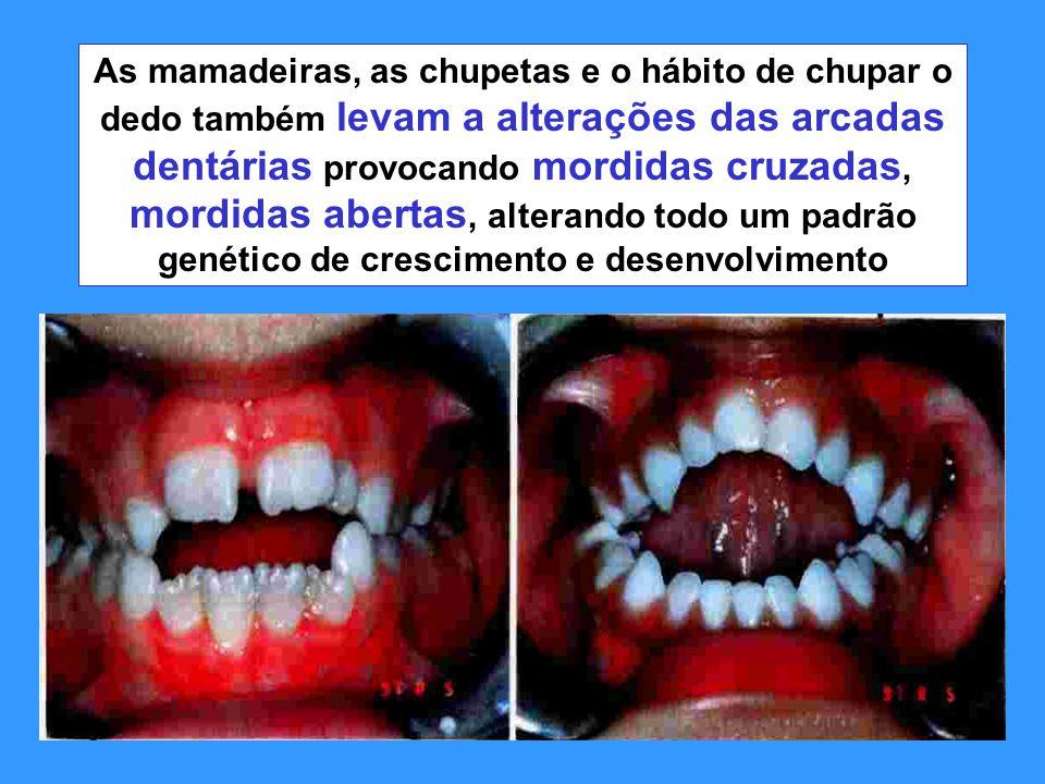 As mamadeiras, as chupetas e o hábito de chupar o dedo também levam a alterações das arcadas dentárias provocando mordidas cruzadas, mordidas abertas,