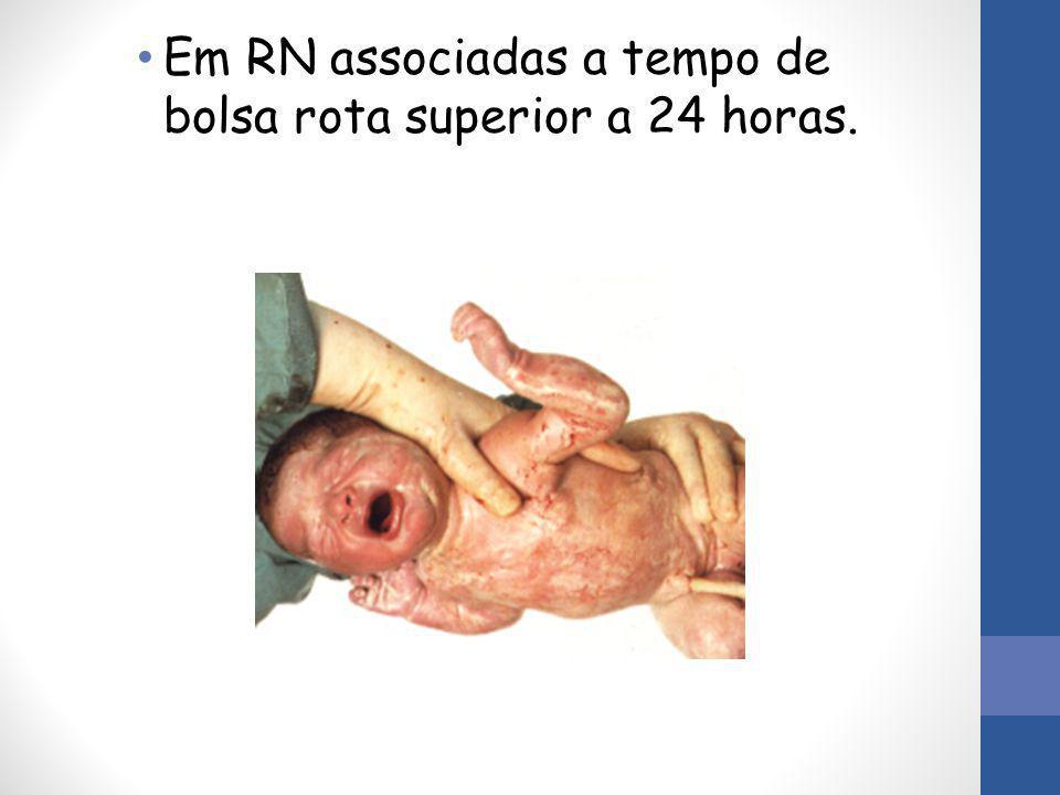 Em RN associadas a tempo de bolsa rota superior a 24 horas.