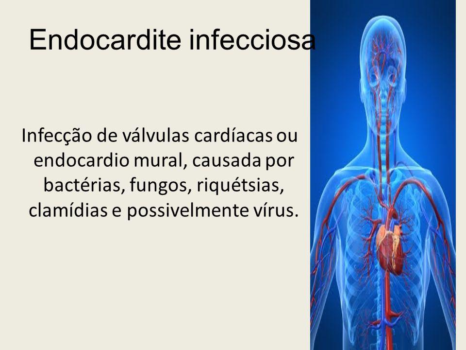 Endocardite infecciosa Infecção de válvulas cardíacas ou endocardio mural, causada por bactérias, fungos, riquétsias, clamídias e possivelmente vírus.