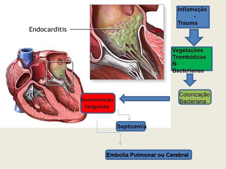 Inflamação - Trauma Vegetações Trombóticas Ñ- Bacterianas Colonização Bacteriana Disseminação Sanguínea Septicemia Embolia Pulmonar ou Cerebral