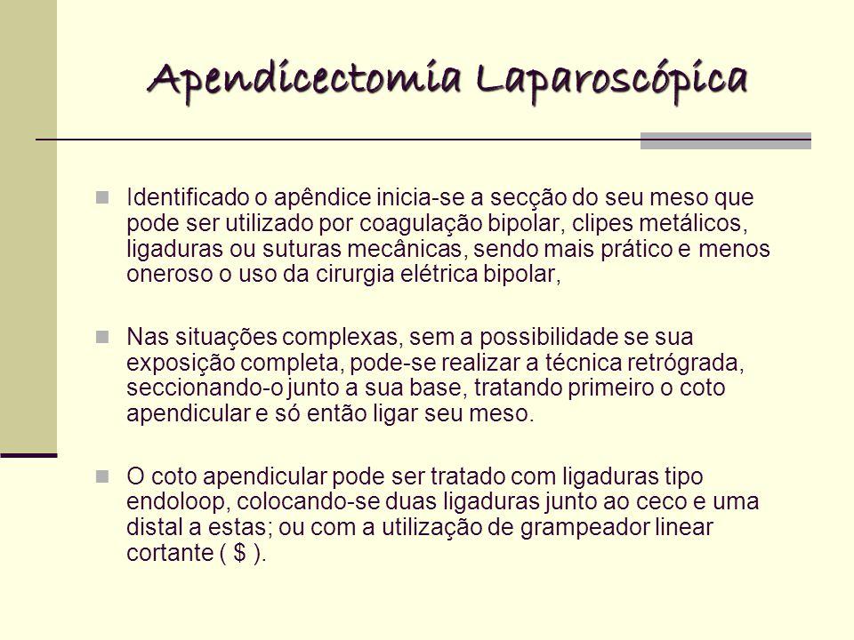 Apendicectomia Laparoscópica Identificado o apêndice inicia-se a secção do seu meso que pode ser utilizado por coagulação bipolar, clipes metálicos, l