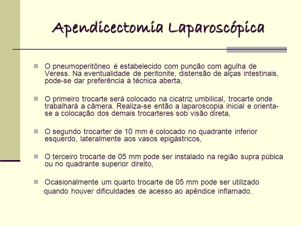 Apendicectomia Laparoscópica O pneumoperitôneo é estabelecido com punção com agulha de Veress. Na eventualidade de peritonite, distensão de alças inte