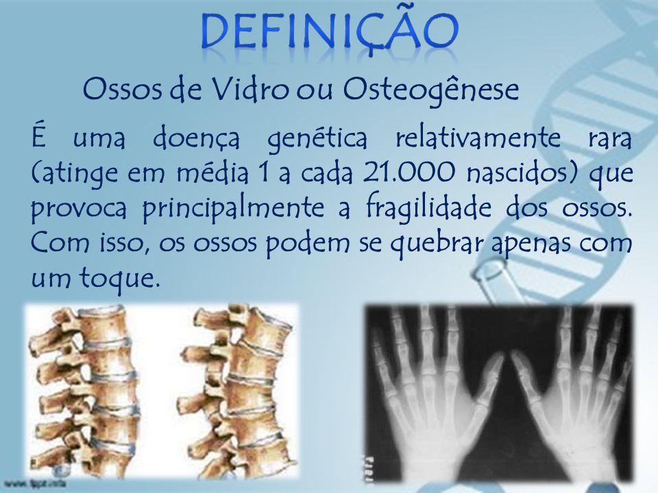 Ossos de Vidro ou Osteogênese É uma doença genética relativamente rara (atinge em média 1 a cada 21.000 nascidos) que provoca principalmente a fragilidade dos ossos.