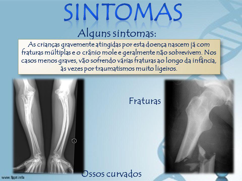 Alguns sintomas: Ossos curvados Fraturas As crianças gravemente atingidas por esta doença nascem já com fraturas múltiplas e o crânio mole e geralmente não sobrevivem.