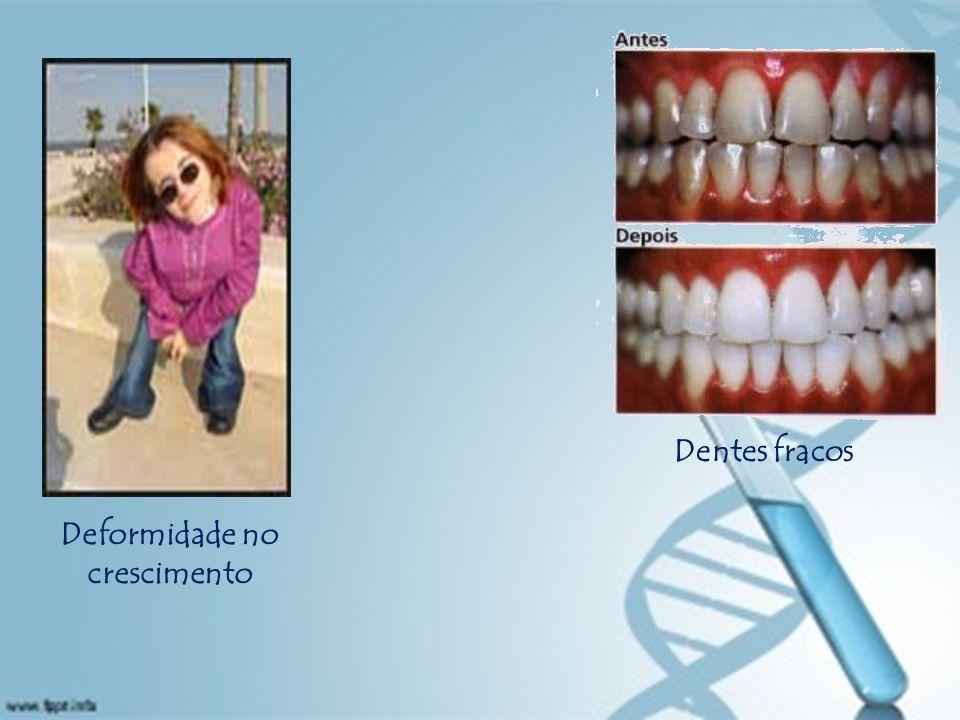 Deformidade no crescimento Dentes fracos