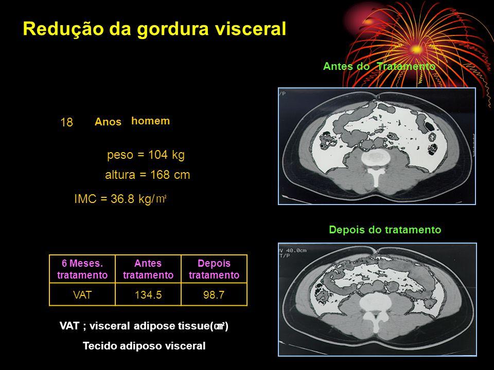 Redução da gordura visceral 18 Anos peso = 104 kg altura = 168 cm IMC = 36.8 kg/ ㎡ 6 Meses.