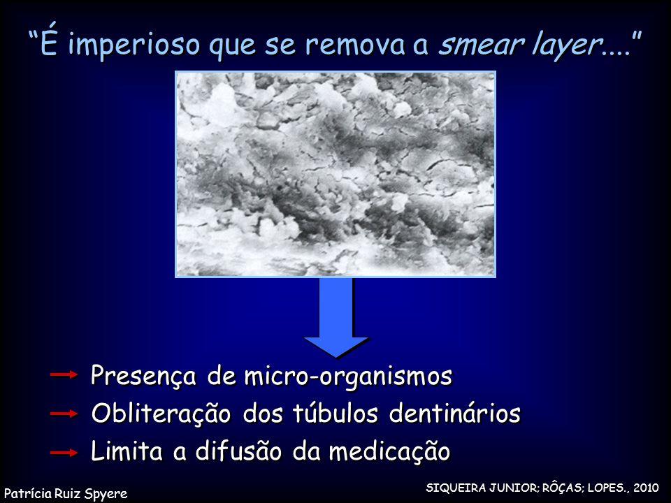 """""""É imperioso que se remova a smear layer...."""" Presença de micro-organismos Obliteração dos túbulos dentinários Limita a difusão da medicação Presença"""