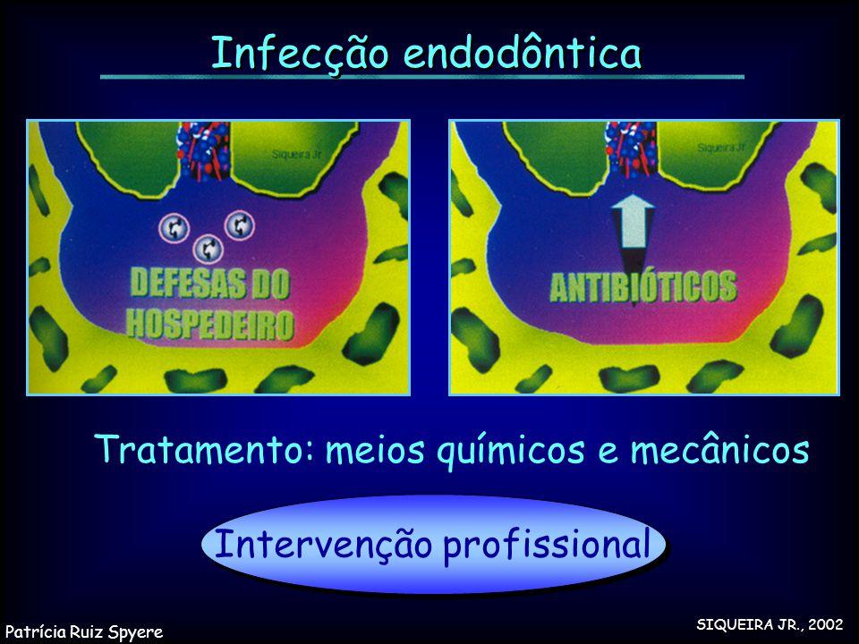 Intervenção profissional Infecção endodôntica Tratamento: meios químicos e mecânicos SIQUEIRA JR., 2002 Patrícia Ruiz Spyere