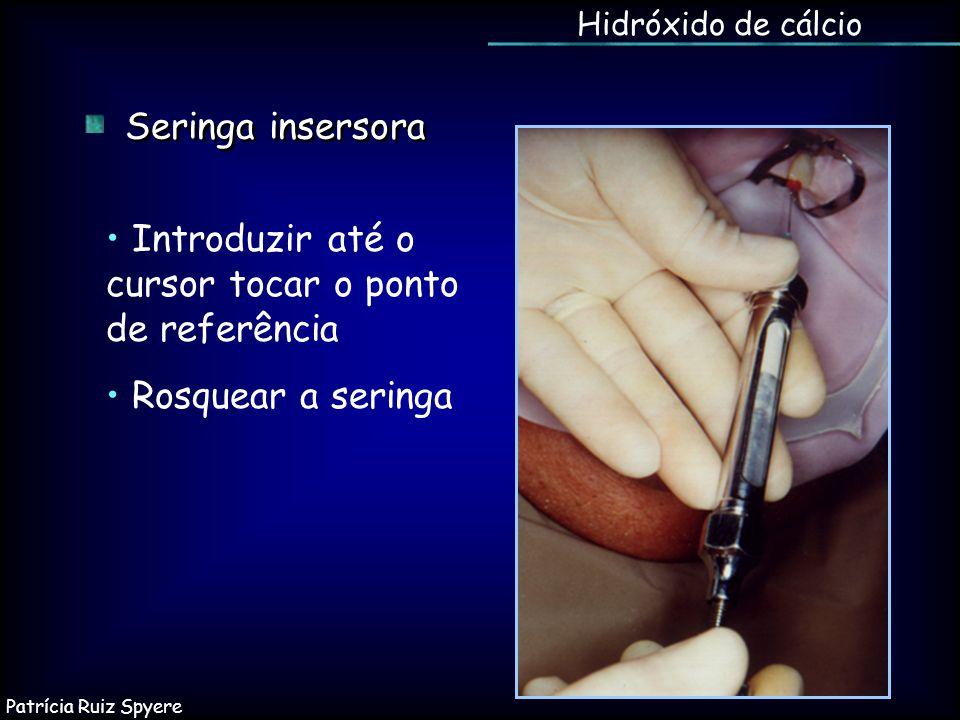 Hidróxido de cálcio Seringa insersora Introduzir até o cursor tocar o ponto de referência Rosquear a seringa Patrícia Ruiz Spyere