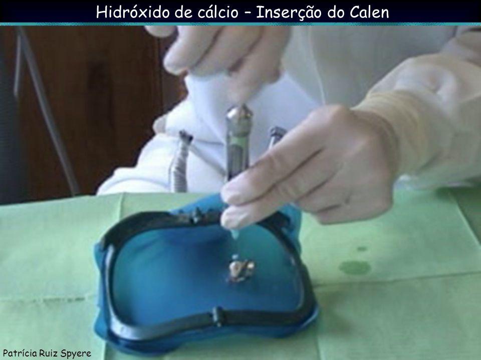 Hidróxido de cálcio – Inserção do Calen Patrícia Ruiz Spyere