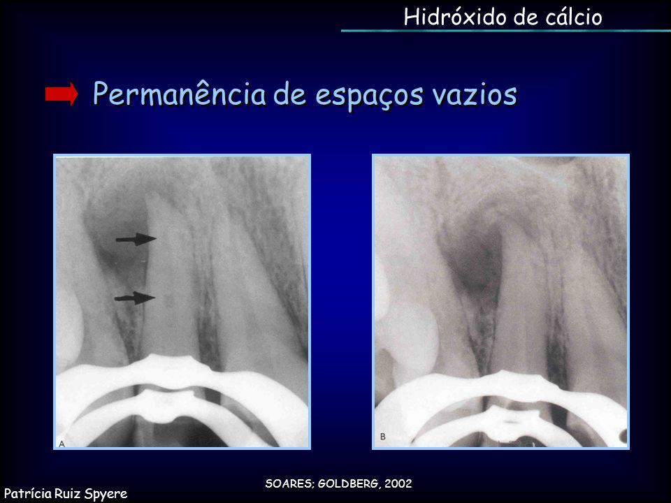 Permanência de espaços vazios SOARES; GOLDBERG, 2002 Hidróxido de cálcio Patrícia Ruiz Spyere