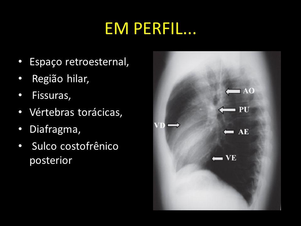 EM PERFIL... Espaço retroesternal, Região hilar, Fissuras, Vértebras torácicas, Diafragma, Sulco costofrênico posterior