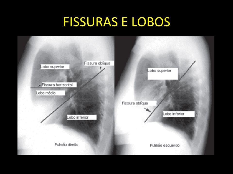 FISSURAS E LOBOS