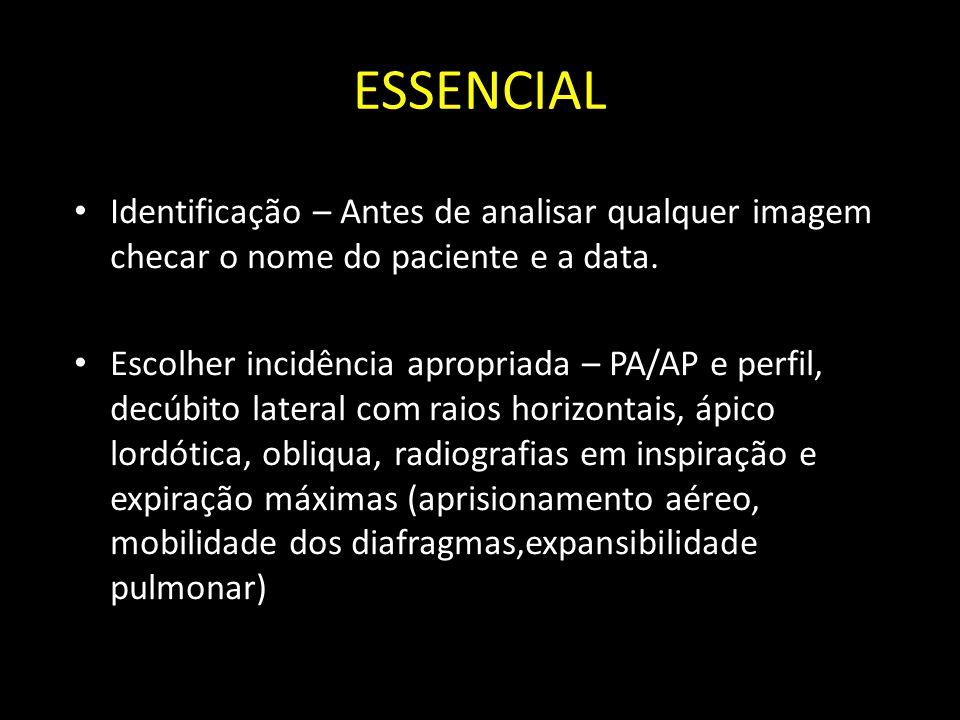 ESSENCIAL Identificação – Antes de analisar qualquer imagem checar o nome do paciente e a data. Escolher incidência apropriada – PA/AP e perfil, decúb