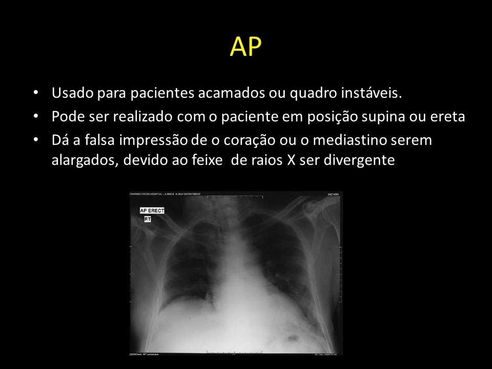 AP Usado para pacientes acamados ou quadro instáveis. Pode ser realizado com o paciente em posição supina ou ereta Dá a falsa impressão de o coração o