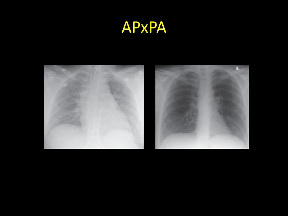 APxPA