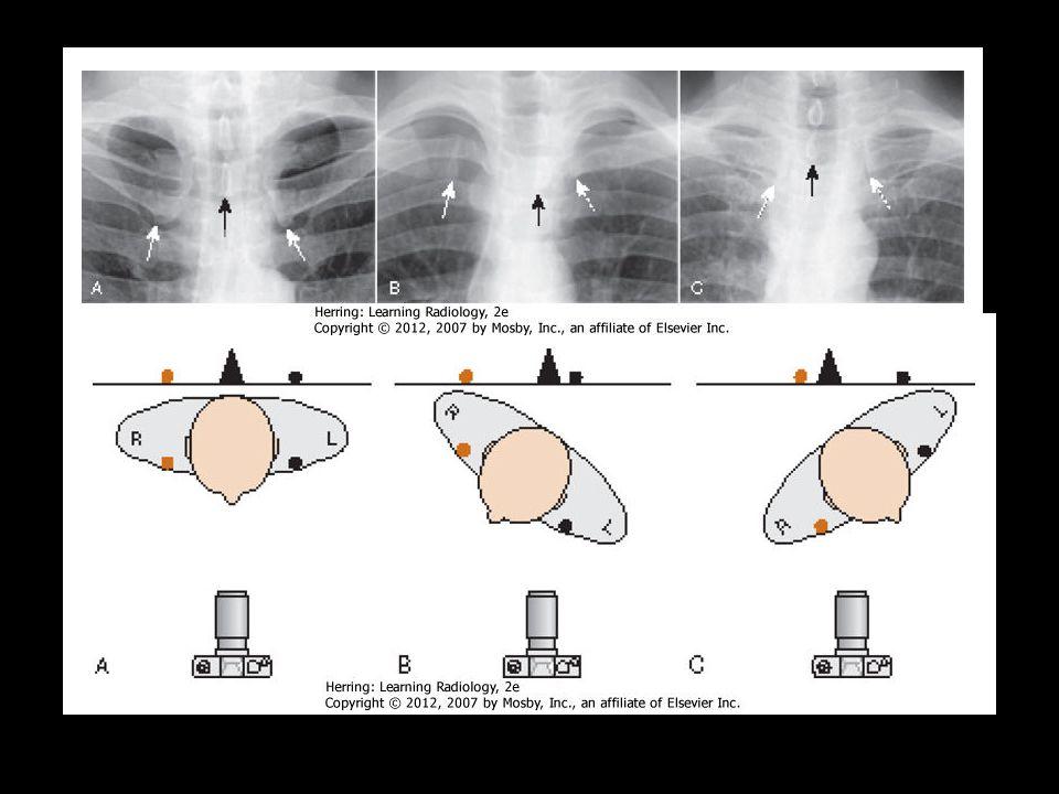 Rotação Processo espinhoso deve se distanciar equivalentemente entre as partes mediais da clavícula de cada lado