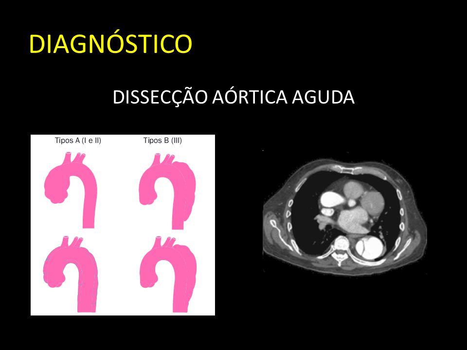 DIAGNÓSTICO DISSECÇÃO AÓRTICA AGUDA