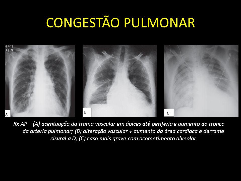 CONGESTÃO PULMONAR Rx AP – (A) acentuação da trama vascular em ápices até periferia e aumento do tronco da artéria pulmonar; (B) alteração vascular +