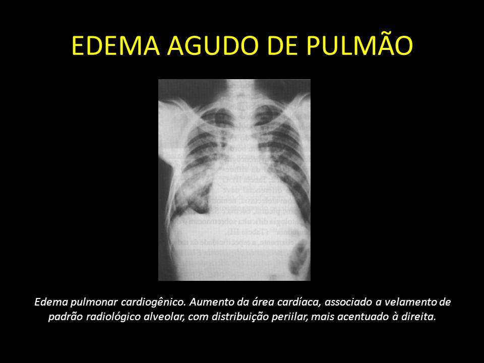 EDEMA AGUDO DE PULMÃO Edema pulmonar cardiogênico. Aumento da área cardíaca, associado a velamento de padrão radiológico alveolar, com distribuição pe