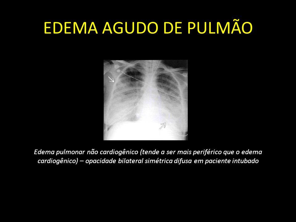 EDEMA AGUDO DE PULMÃO Edema pulmonar não cardiogênico (tende a ser mais periférico que o edema cardiogênico) – opacidade bilateral simétrica difusa em