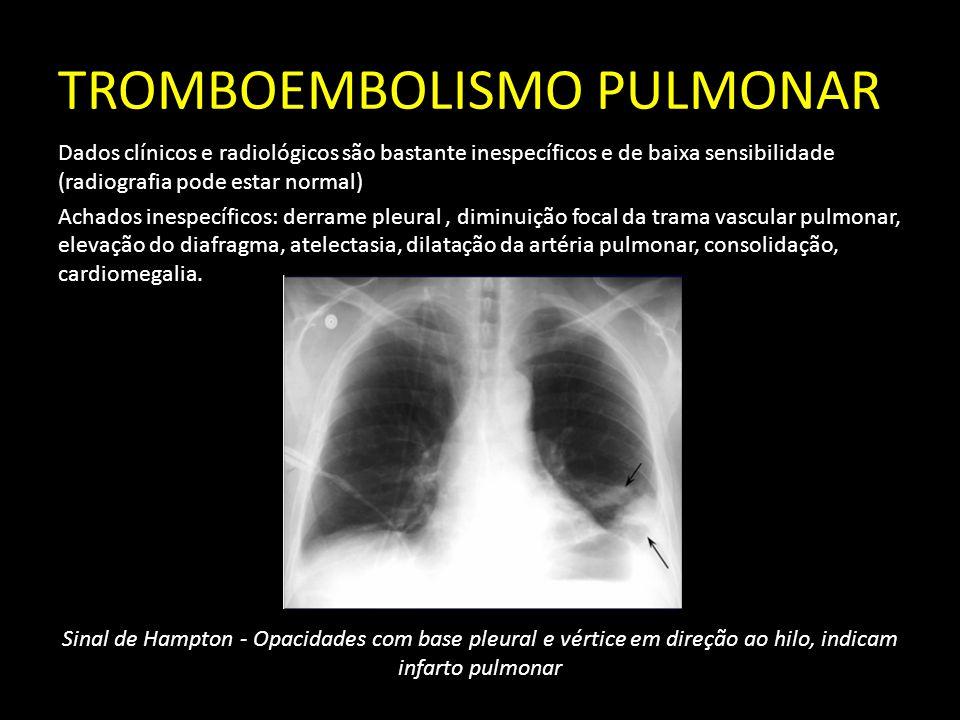 TROMBOEMBOLISMO PULMONAR Dados clínicos e radiológicos são bastante inespecíficos e de baixa sensibilidade (radiografia pode estar normal) Achados ine