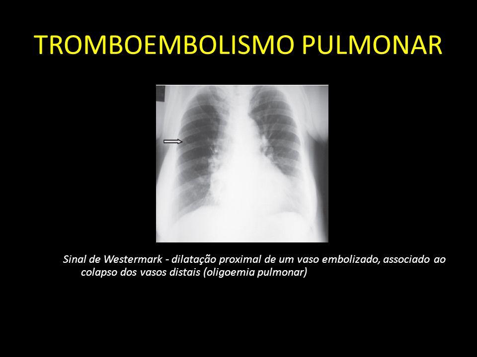 TROMBOEMBOLISMO PULMONAR Sinal de Westermark - dilatação proximal de um vaso embolizado, associado ao colapso dos vasos distais (oligoemia pulmonar)
