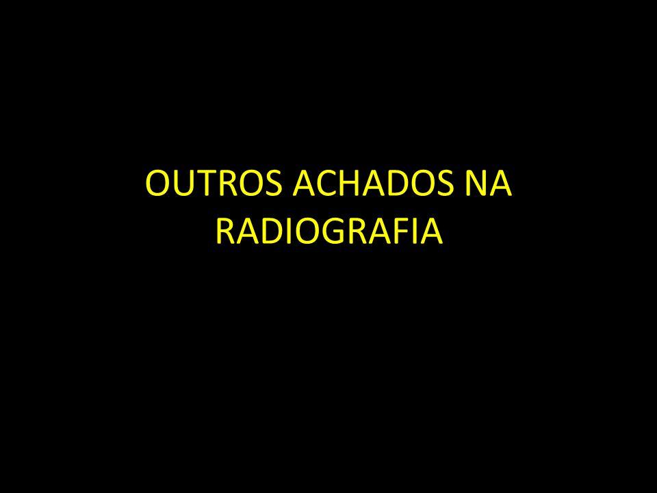 OUTROS ACHADOS NA RADIOGRAFIA