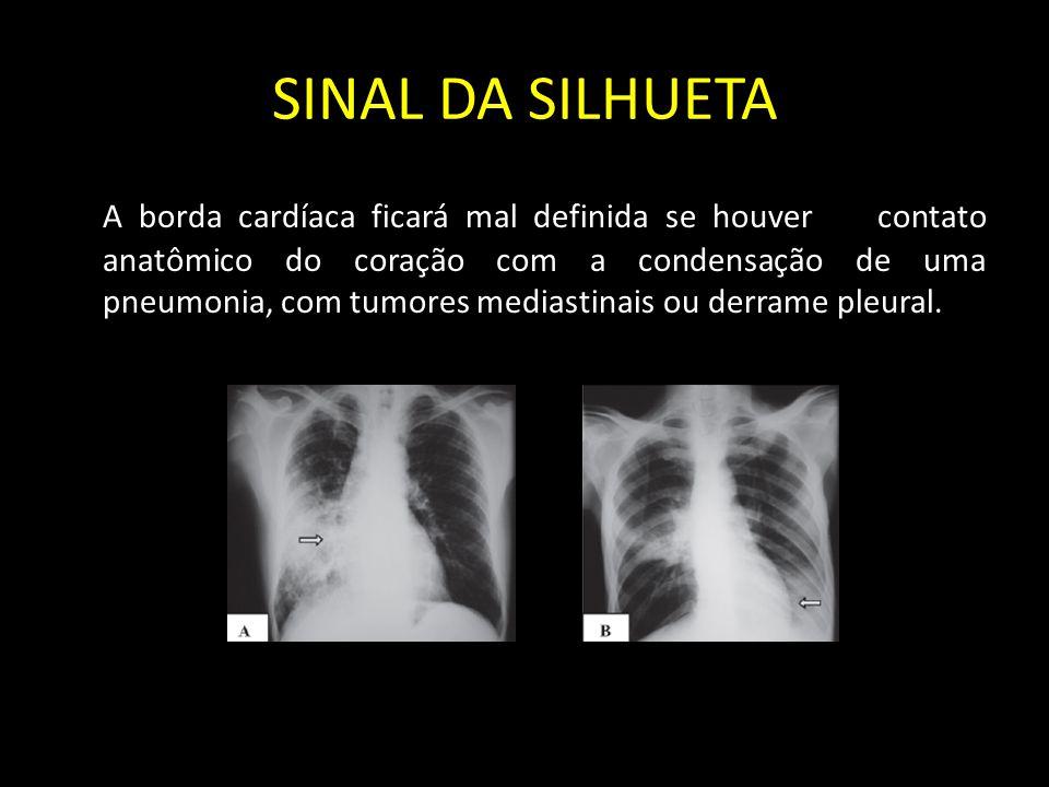 SINAL DA SILHUETA A borda cardíaca ficará mal definida se houver contato anatômico do coração com a condensação de uma pneumonia, com tumores mediasti
