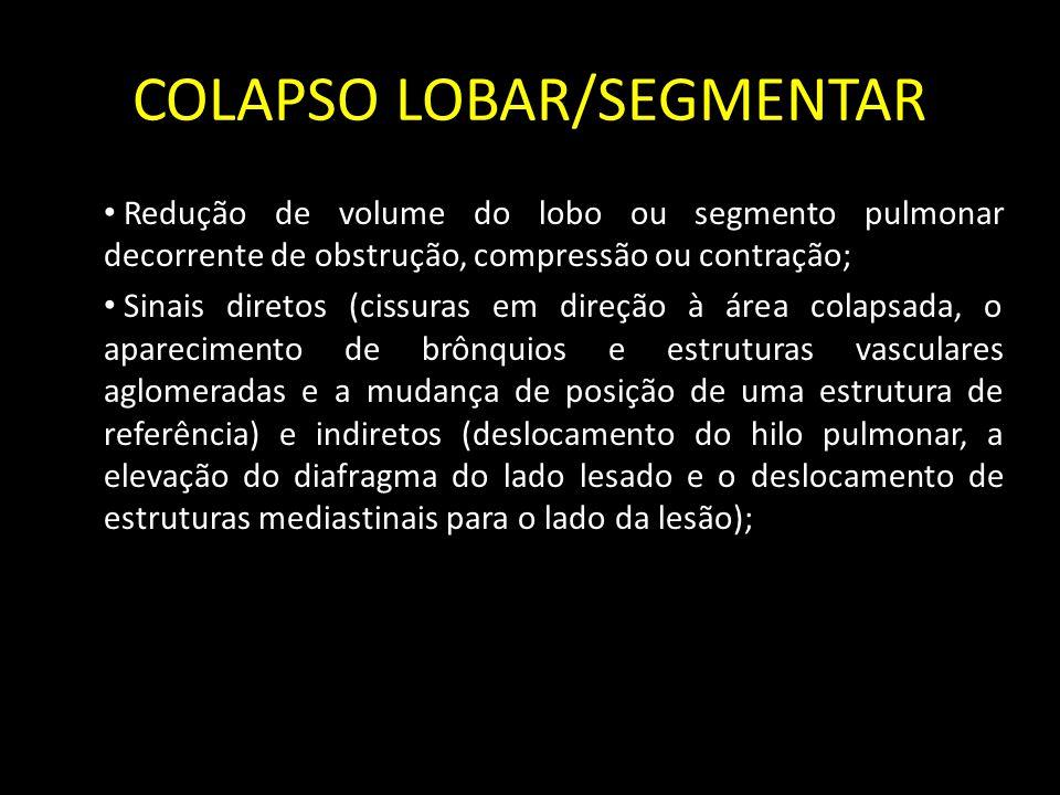 COLAPSO LOBAR/SEGMENTAR Redução de volume do lobo ou segmento pulmonar decorrente de obstrução, compressão ou contração; Sinais diretos (cissuras em d