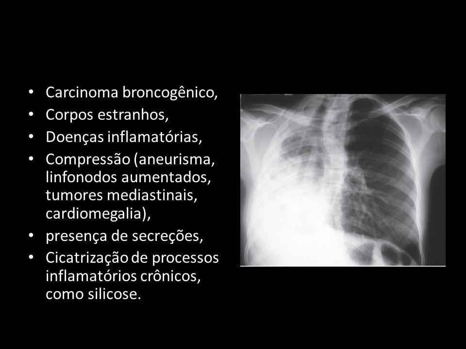 Carcinoma broncogênico, Corpos estranhos, Doenças inflamatórias, Compressão (aneurisma, linfonodos aumentados, tumores mediastinais, cardiomegalia), p