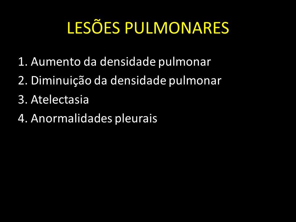 LESÕES PULMONARES 1. Aumento da densidade pulmonar 2. Diminuição da densidade pulmonar 3. Atelectasia 4. Anormalidades pleurais