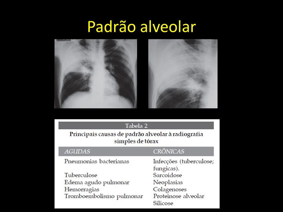 Padrão alveolar
