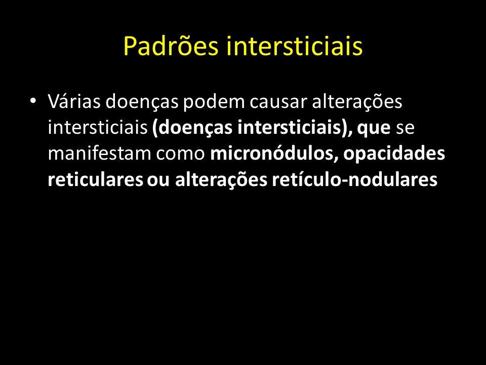 Padrões intersticiais Várias doenças podem causar alterações intersticiais (doenças intersticiais), que se manifestam como micronódulos, opacidades re