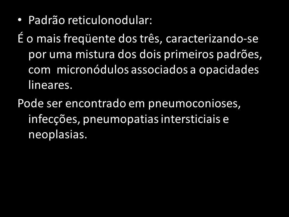 Padrão reticulonodular: É o mais freqüente dos três, caracterizando-se por uma mistura dos dois primeiros padrões, com micronódulos associados a opaci