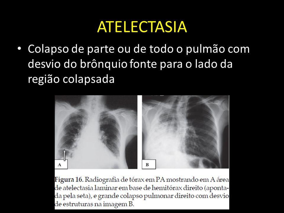 ATELECTASIA Colapso de parte ou de todo o pulmão com desvio do brônquio fonte para o lado da região colapsada